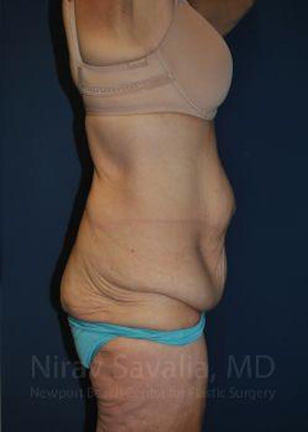 Abdominoplasty / Tummy Tuck Gallery - Patient 1655638 - Image 3