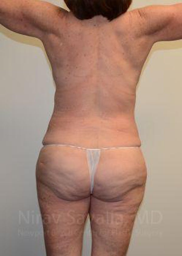 Mommy Makeover Gallery - Patient 1655639 - Image 4