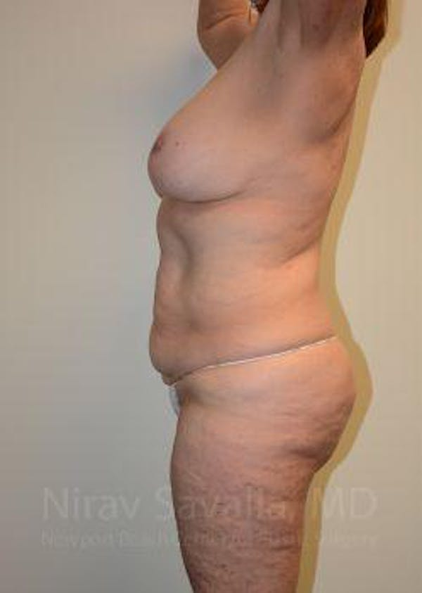 Mommy Makeover Gallery - Patient 1655639 - Image 5