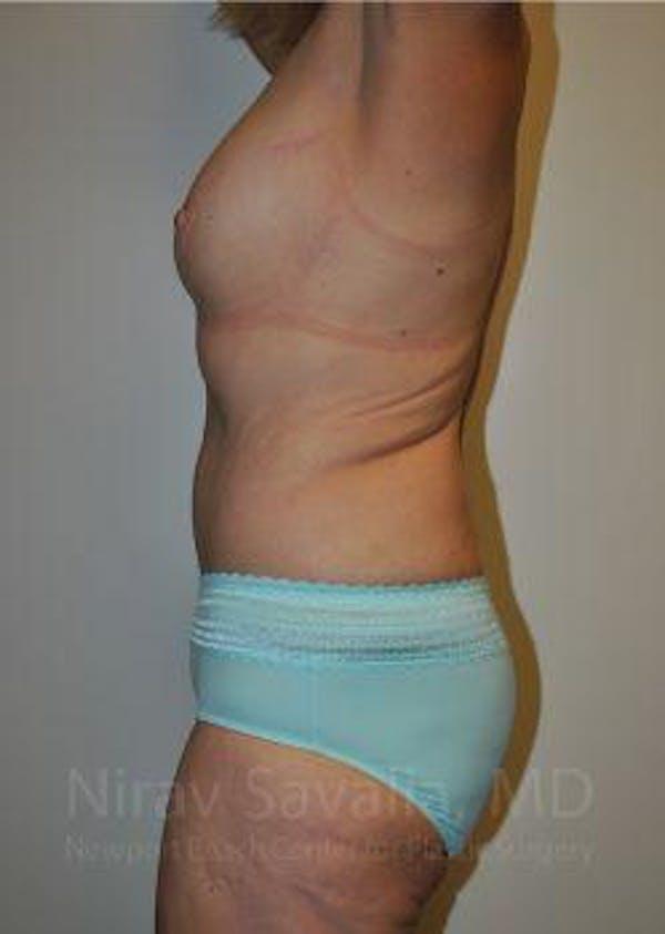 Abdominoplasty / Tummy Tuck Gallery - Patient 1655638 - Image 6