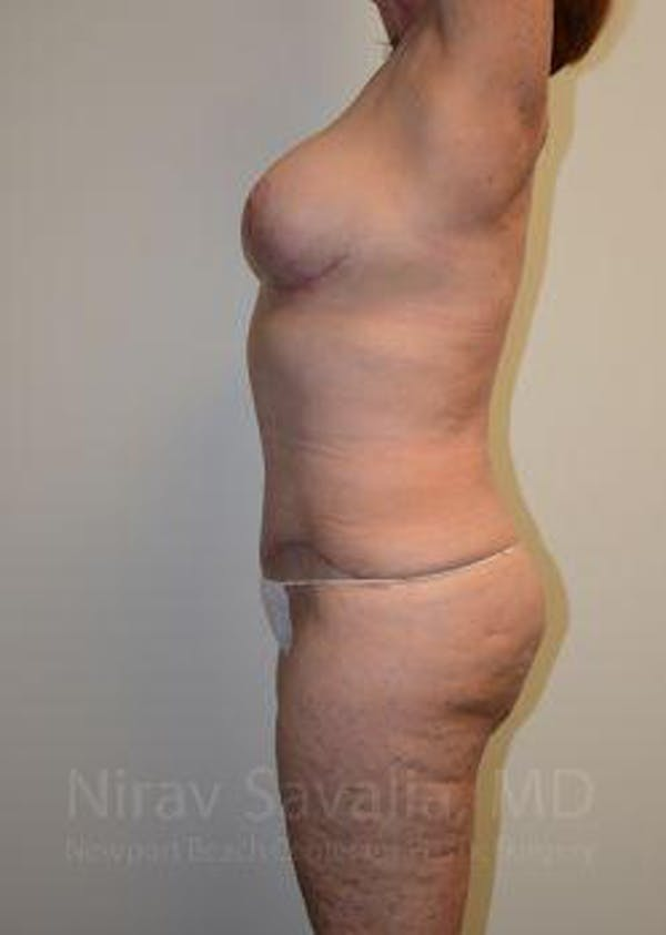 Mommy Makeover Gallery - Patient 1655639 - Image 6