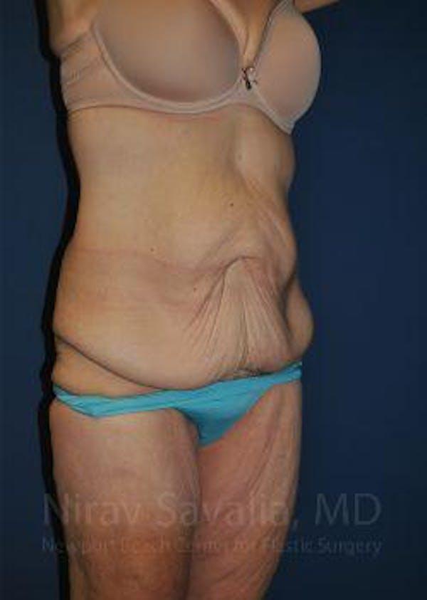 Abdominoplasty / Tummy Tuck Gallery - Patient 1655638 - Image 7