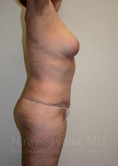 Mommy Makeover Gallery - Patient 1655639 - Image 8