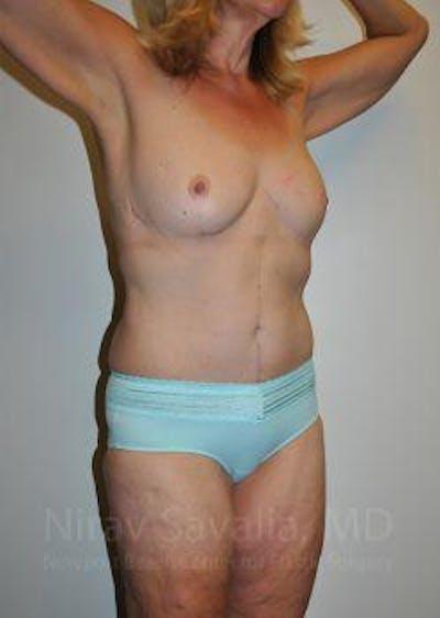 Abdominoplasty / Tummy Tuck Gallery - Patient 1655638 - Image 8
