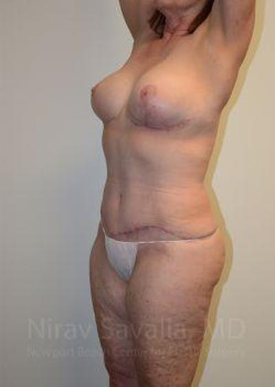 Mommy Makeover Gallery - Patient 1655639 - Image 10