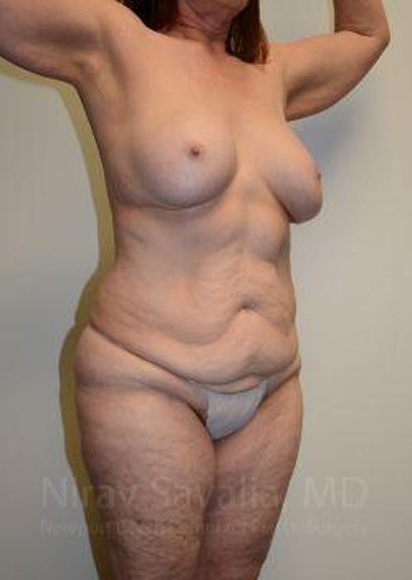 Mommy Makeover Gallery - Patient 1655639 - Image 11