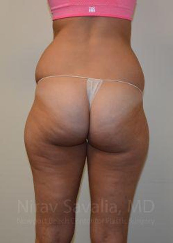 Liposuction Gallery - Patient 1655642 - Image 3