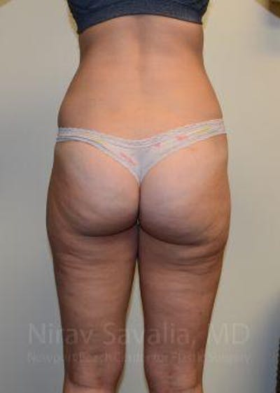 Liposuction Gallery - Patient 1655642 - Image 4