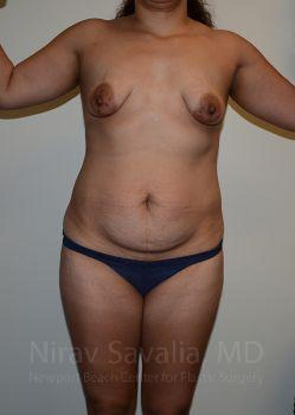 Abdominoplasty / Tummy Tuck Gallery - Patient 1655641 - Image 1