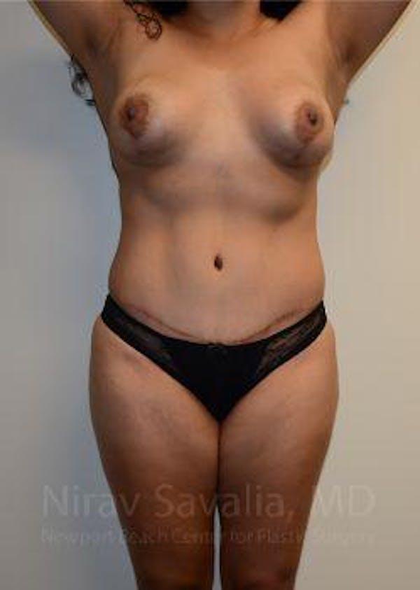 Abdominoplasty / Tummy Tuck Gallery - Patient 1655641 - Image 2