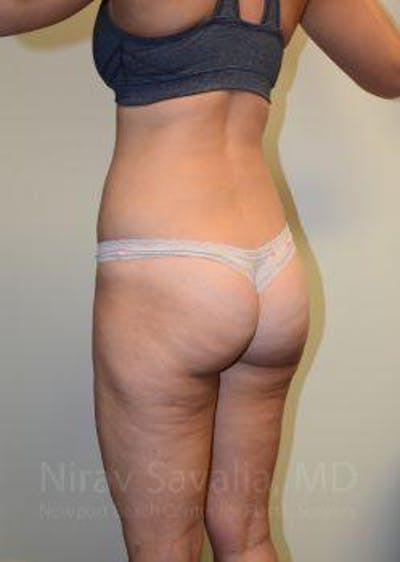 Liposuction Gallery - Patient 1655642 - Image 10