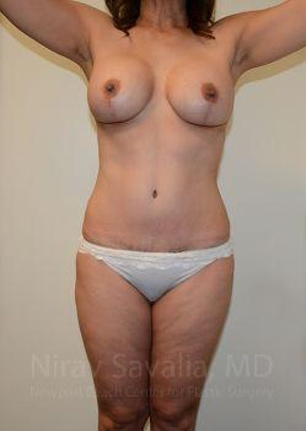 Mommy Makeover Gallery - Patient 1655644 - Image 2
