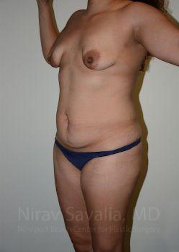 Abdominoplasty / Tummy Tuck Gallery - Patient 1655641 - Image 7