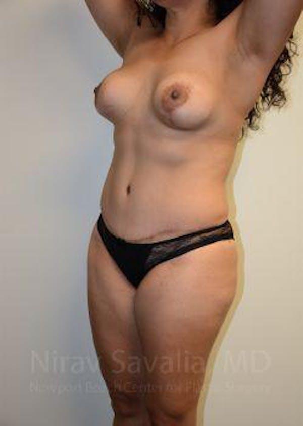 Abdominoplasty / Tummy Tuck Gallery - Patient 1655641 - Image 8