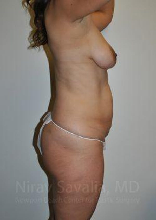 Mommy Makeover Gallery - Patient 1655644 - Image 5