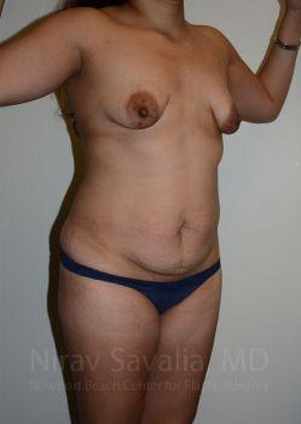 Abdominoplasty / Tummy Tuck Gallery - Patient 1655641 - Image 9