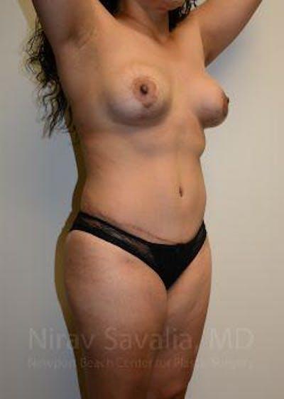 Abdominoplasty / Tummy Tuck Gallery - Patient 1655641 - Image 10