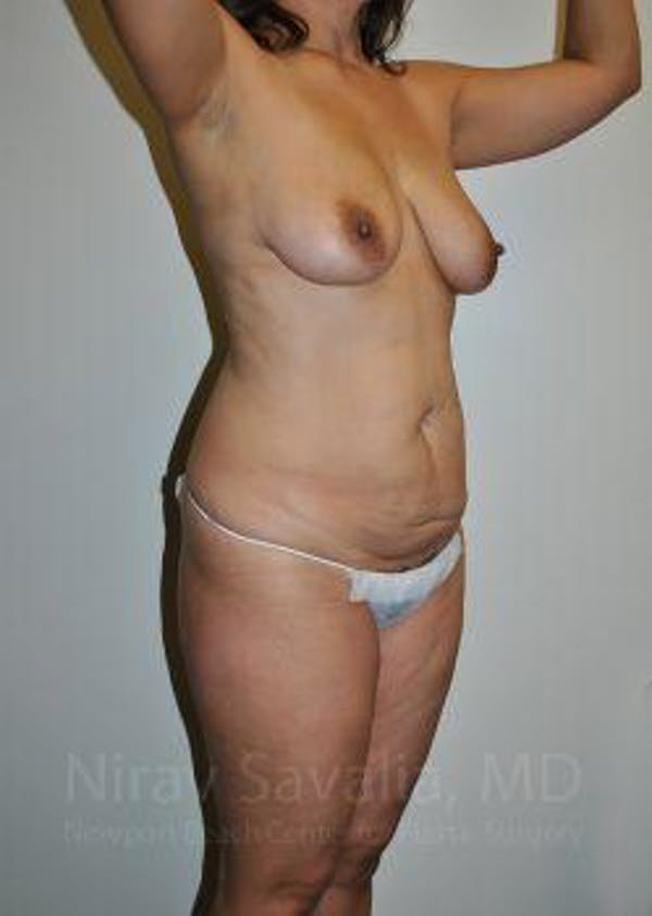 Mommy Makeover Gallery - Patient 1655644 - Image 7