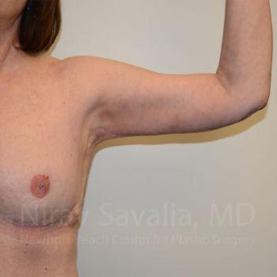 Body Contouring after Weight Loss Gallery - Patient 1655643 - Image 6