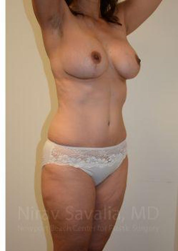 Mommy Makeover Gallery - Patient 1655644 - Image 8