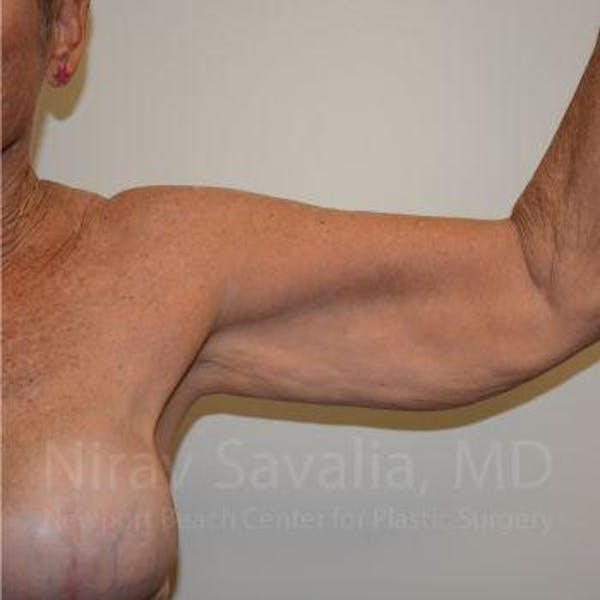 Body Contouring after Weight Loss Gallery - Patient 1655646 - Image 3