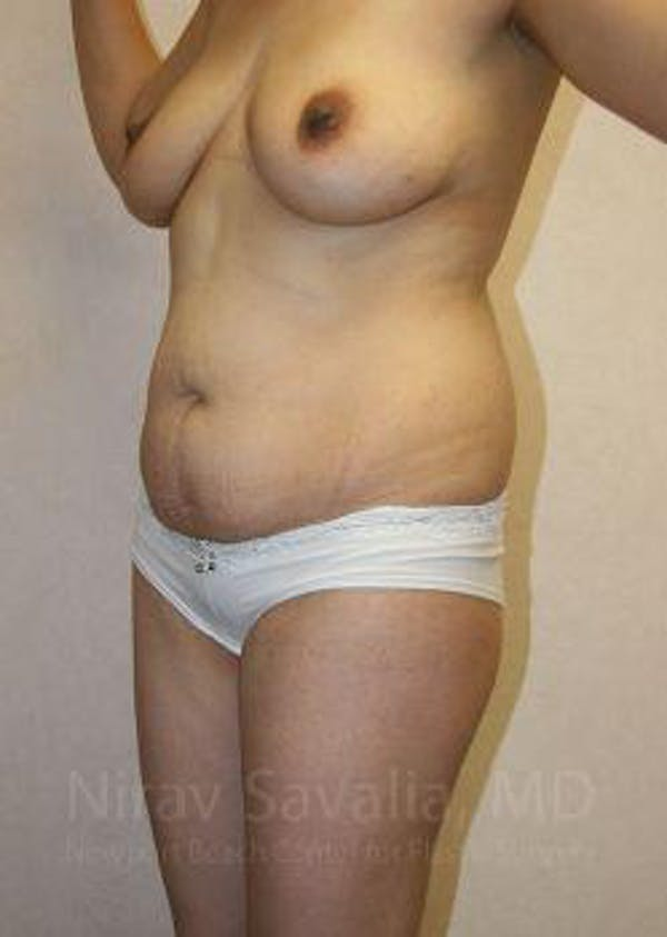 Mommy Makeover Gallery - Patient 1655648 - Image 7