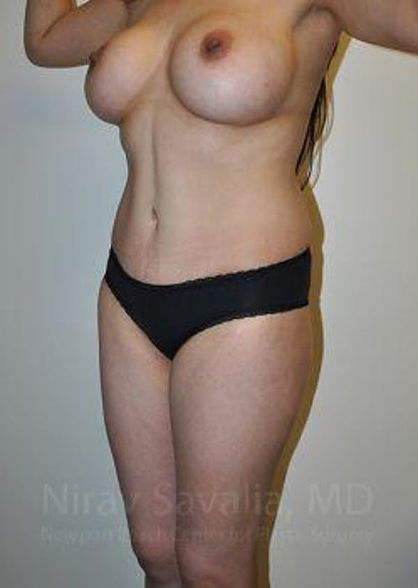 Mommy Makeover Gallery - Patient 1655648 - Image 8