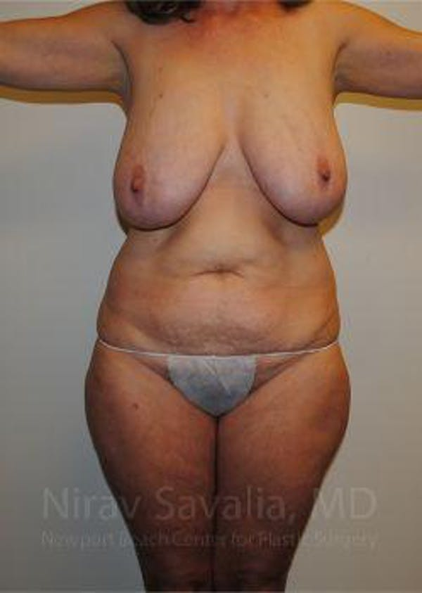 Abdominoplasty / Tummy Tuck Gallery - Patient 1655649 - Image 1
