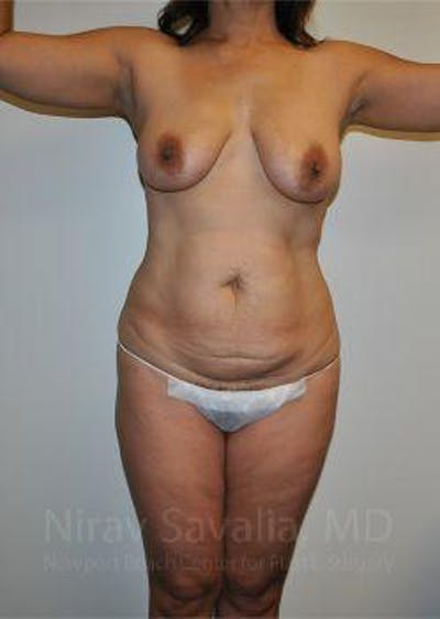 Body Contouring after Weight Loss Gallery - Patient 1655650 - Image 1