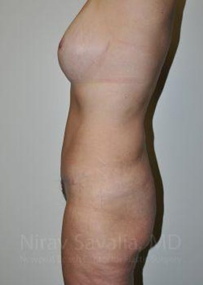 Abdominoplasty / Tummy Tuck Gallery - Patient 1655649 - Image 4