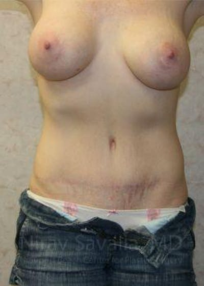 Mommy Makeover Gallery - Patient 1655651 - Image 2