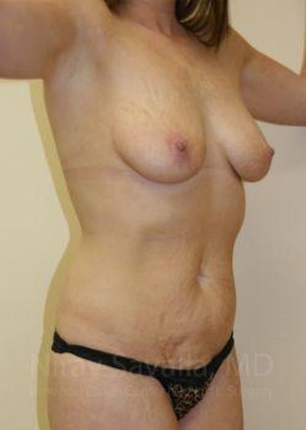 Mommy Makeover Gallery - Patient 1655651 - Image 3