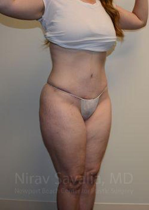 Liposuction Gallery - Patient 1655652 - Image 6
