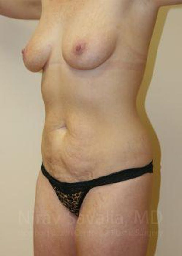 Mommy Makeover Gallery - Patient 1655651 - Image 5