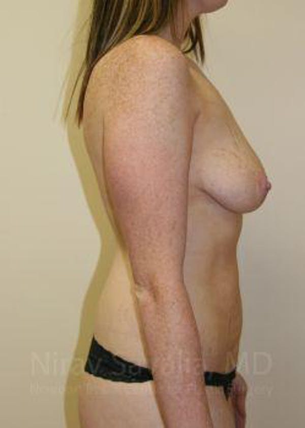 Mommy Makeover Gallery - Patient 1655651 - Image 7