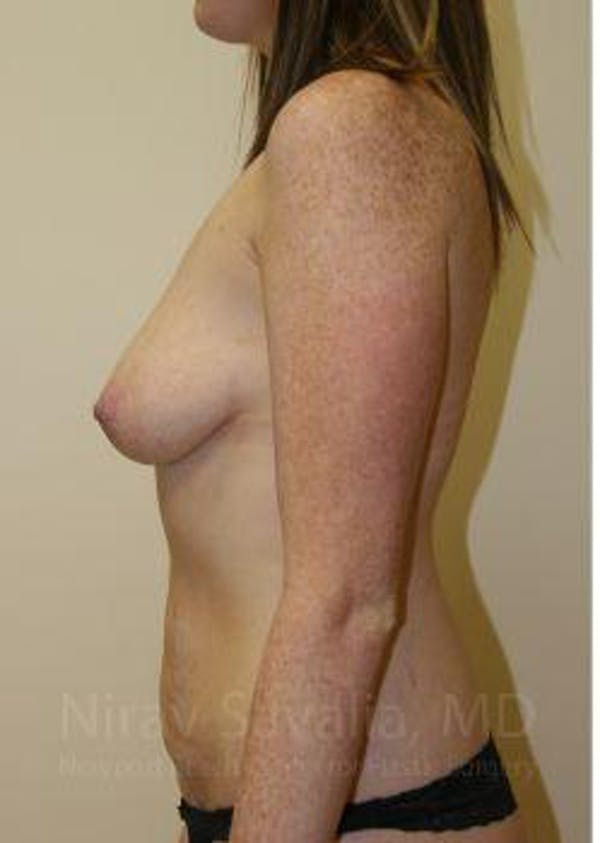 Mommy Makeover Gallery - Patient 1655651 - Image 9