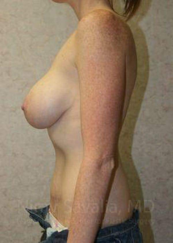 Mommy Makeover Gallery - Patient 1655651 - Image 10