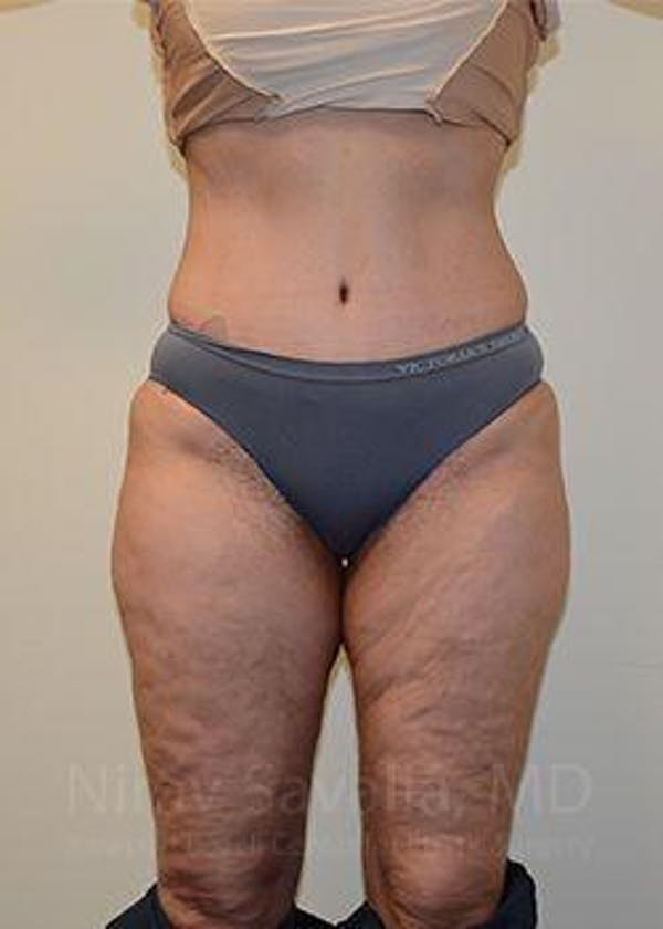 Liposuction Gallery - Patient 1655654 - Image 2