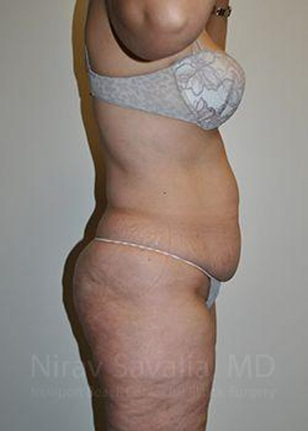 Liposuction Gallery - Patient 1655654 - Image 5