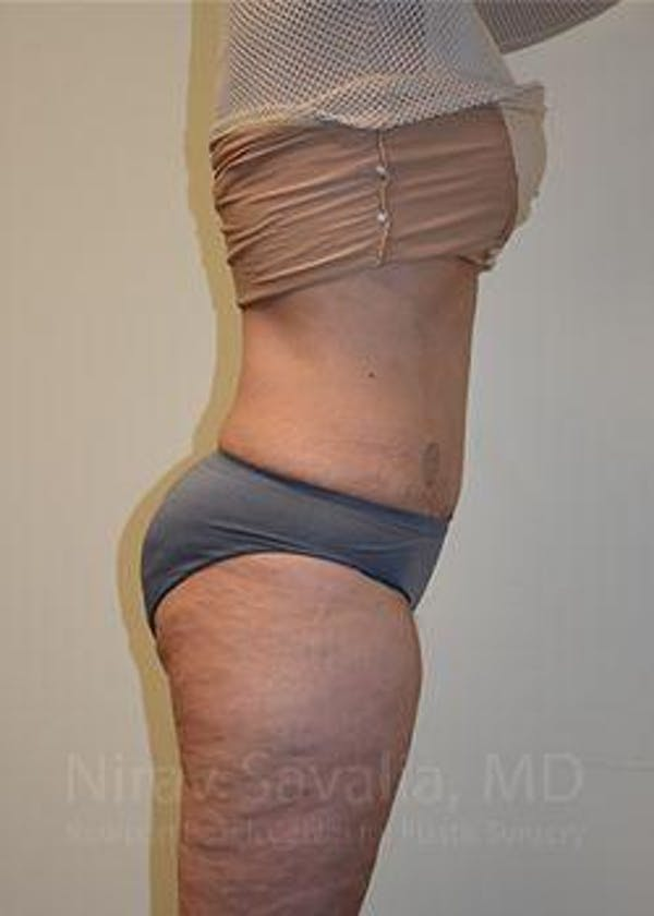 Liposuction Gallery - Patient 1655654 - Image 6
