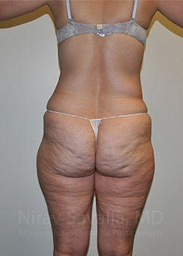 Liposuction Gallery - Patient 1655654 - Image 7