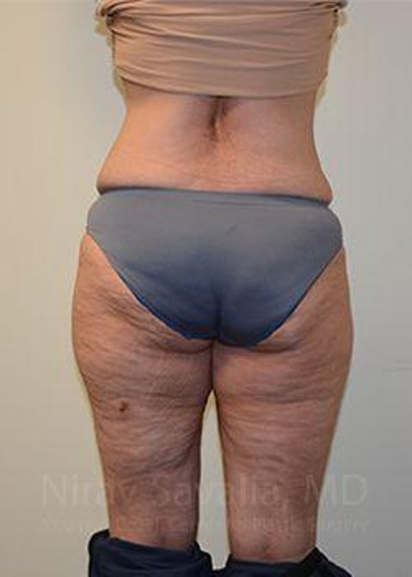 Liposuction Gallery - Patient 1655654 - Image 8
