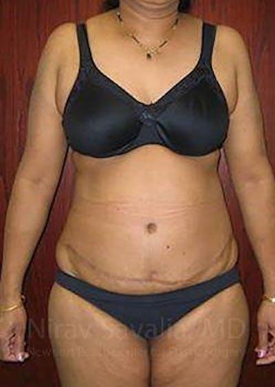 Abdominoplasty / Tummy Tuck Gallery - Patient 1655655 - Image 2