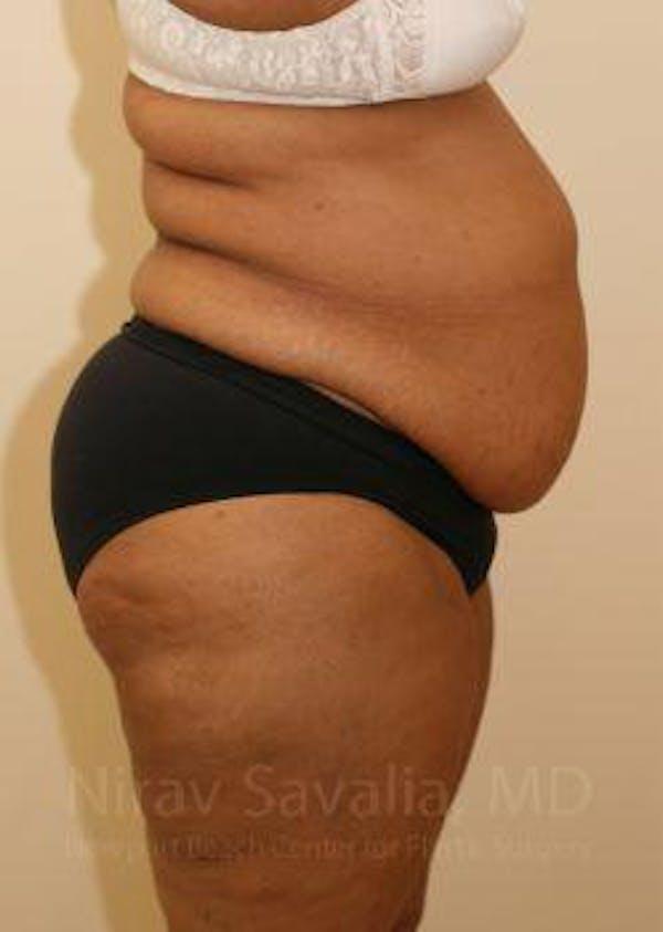 Abdominoplasty / Tummy Tuck Gallery - Patient 1655655 - Image 3