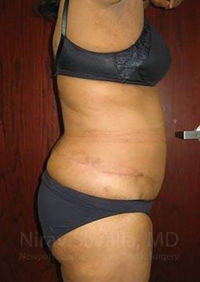 Abdominoplasty / Tummy Tuck Gallery - Patient 1655655 - Image 4