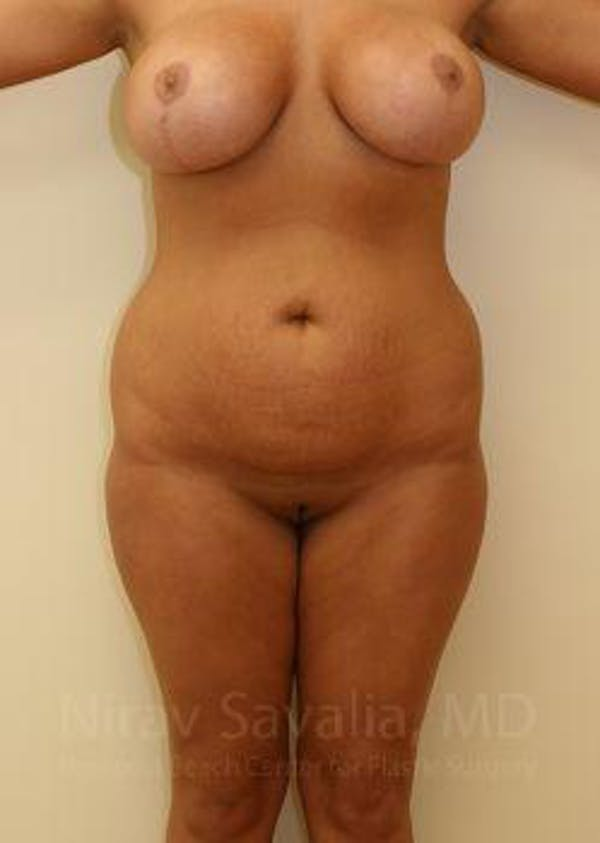 Liposuction Gallery - Patient 1655656 - Image 1