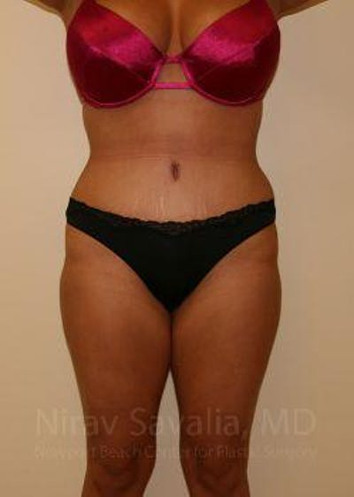 Liposuction Gallery - Patient 1655656 - Image 2