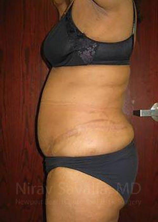 Abdominoplasty / Tummy Tuck Gallery - Patient 1655655 - Image 6