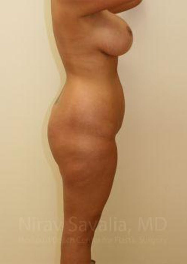 Liposuction Gallery - Patient 1655656 - Image 5