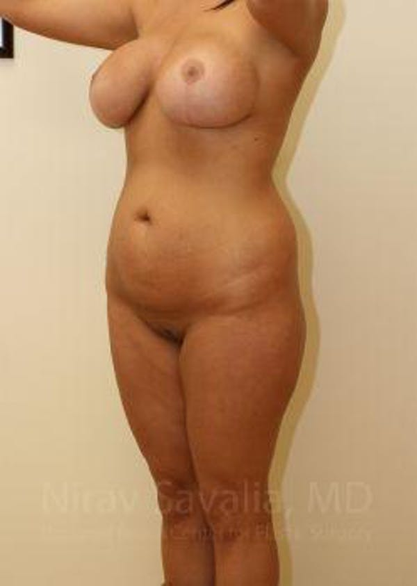 Liposuction Gallery - Patient 1655656 - Image 7